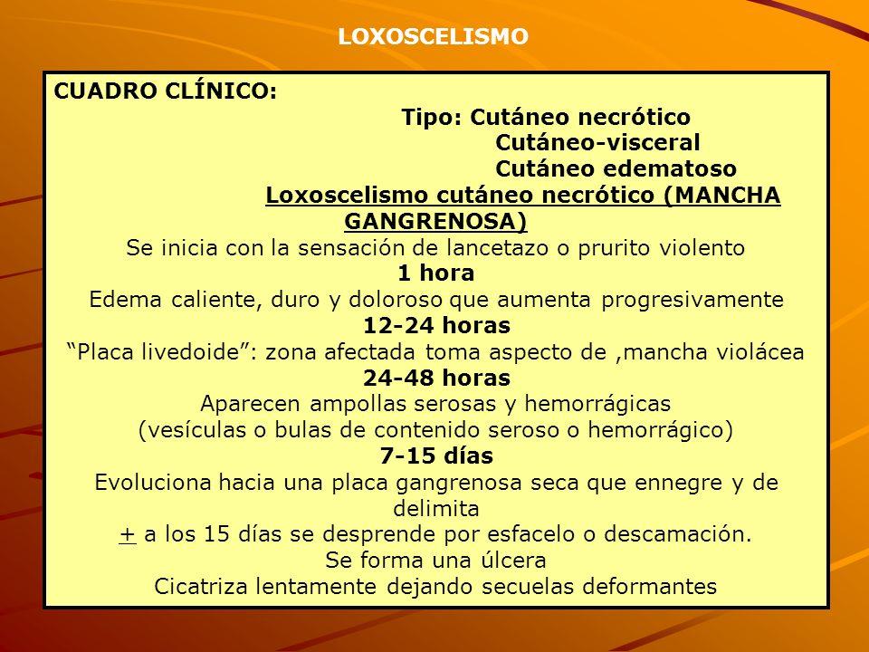 CUADRO CLÍNICO: Tipo: Cutáneo necrótico Cutáneo-visceral Cutáneo edematoso Loxoscelismo cutáneo necrótico (MANCHA GANGRENOSA) Se inicia con la sensaci
