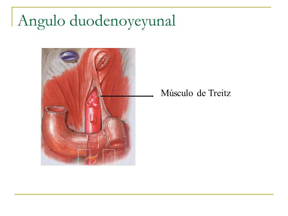 Angulo duodenoyeyunal Músculo de Treitz
