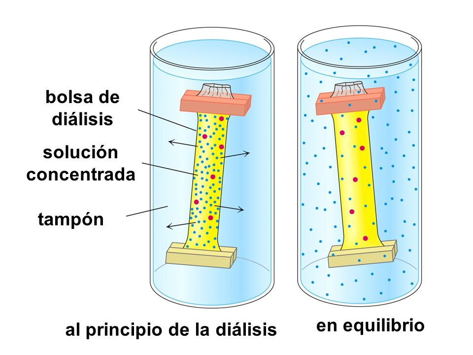 bolsa de diálisis solución concentrada tampón al principio de la diálisis en equilibrio