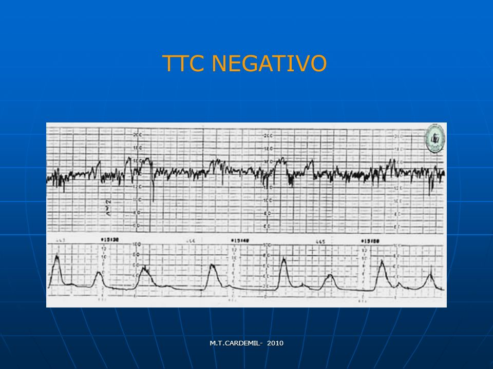 M.T.CARDEMIL- 2010 TTC NEGATIVO
