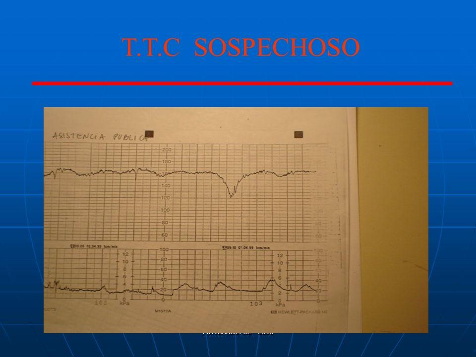 M.T.CARDEMIL- 2010 T.T.C SOSPECHOSO