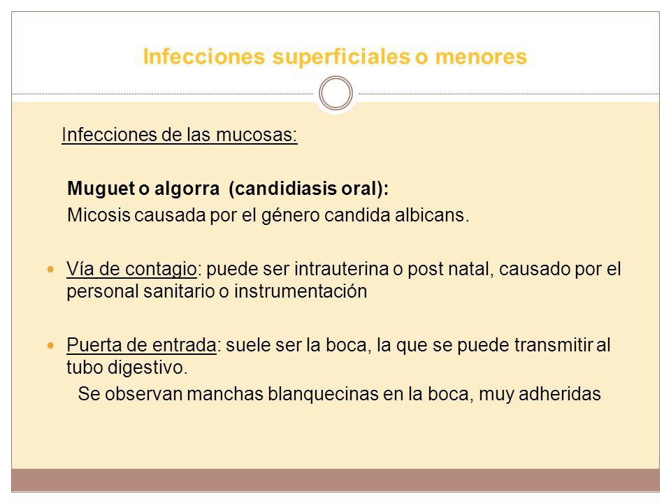Infecciones superficiales o menores Infecciones de las mucosas: Muguet o algorra (candidiasis oral): Micosis causada por el género candida albicans. V