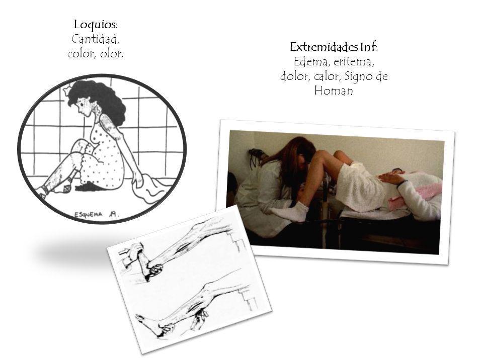 Loquios: Cantidad, color, olor. Extremidades Inf: Edema, eritema, dolor, calor, Signo de Homan