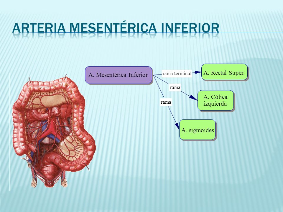rama terminal rama A. Mesentérica Inferior A. Rectal Super. A. Cólica izquierda A. sigmoides