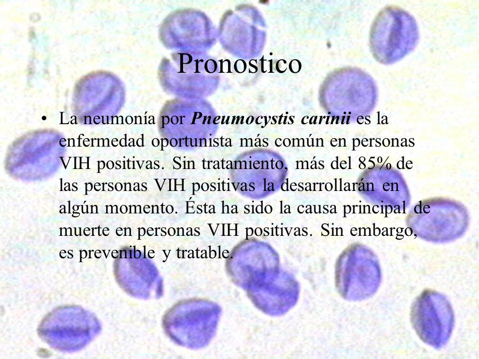 Pronostico La neumonía por Pneumocystis carinii es la enfermedad oportunista más común en personas VIH positivas. Sin tratamiento, más del 85% de las
