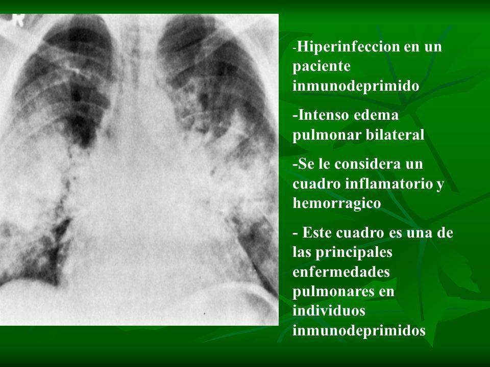 - Hiperinfeccion en un paciente inmunodeprimido -Intenso edema pulmonar bilateral -Se le considera un cuadro inflamatorio y hemorragico - Este cuadro