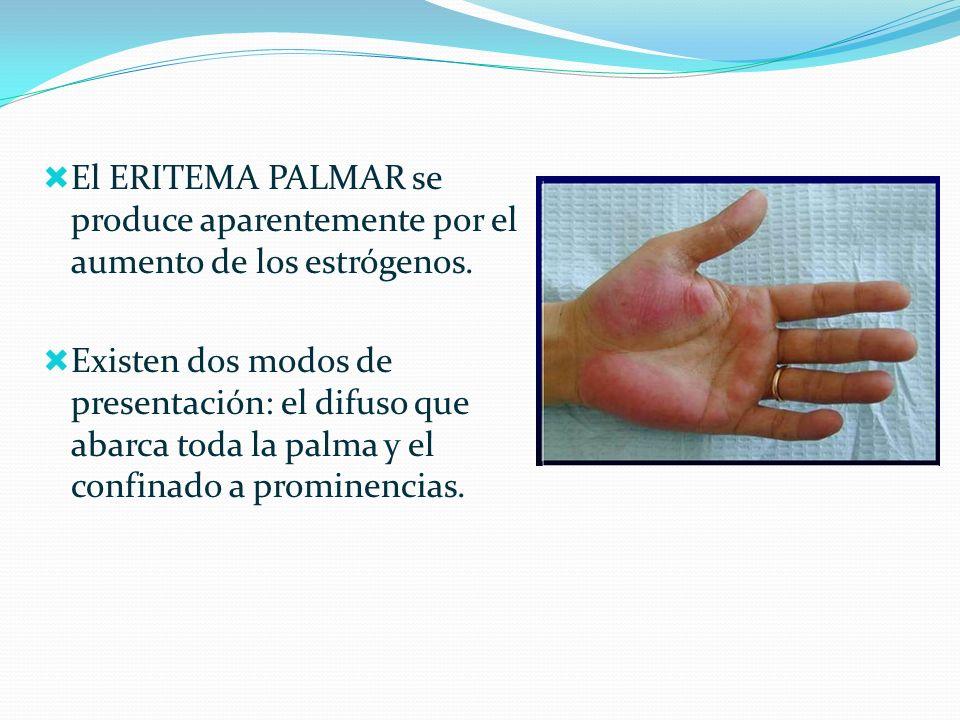 El ERITEMA PALMAR se produce aparentemente por el aumento de los estrógenos. Existen dos modos de presentación: el difuso que abarca toda la palma y e