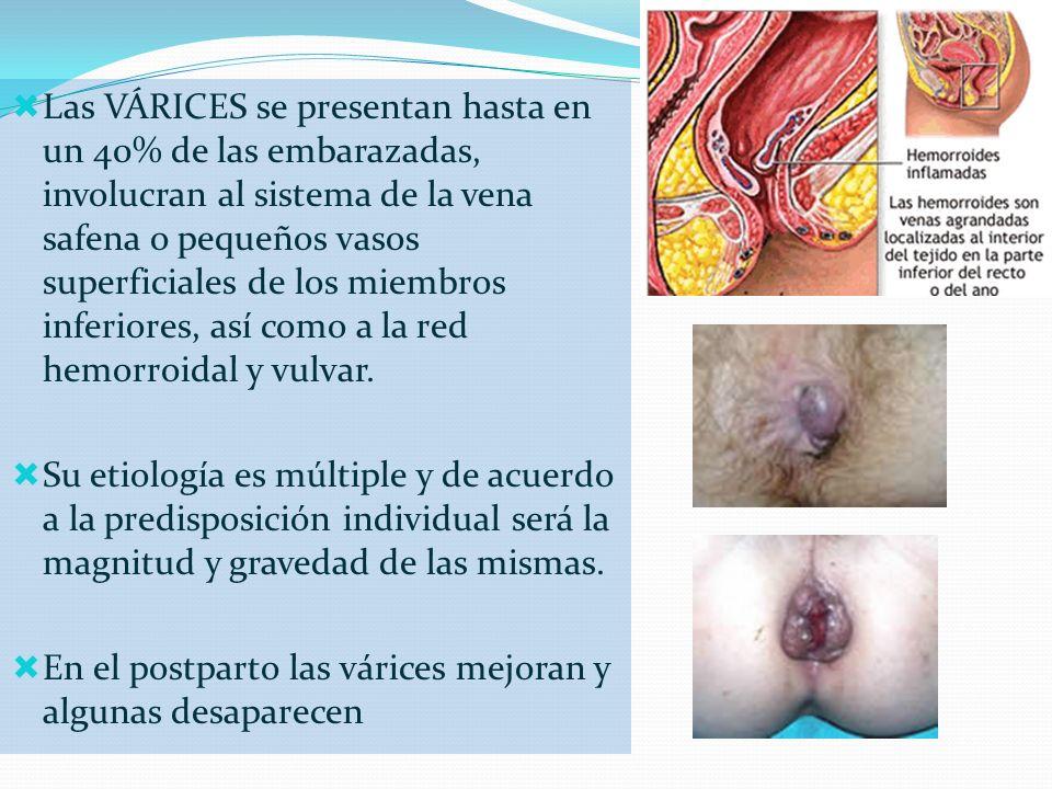 Las VÁRICES se presentan hasta en un 40% de las embarazadas, involucran al sistema de la vena safena o pequeños vasos superficiales de los miembros in