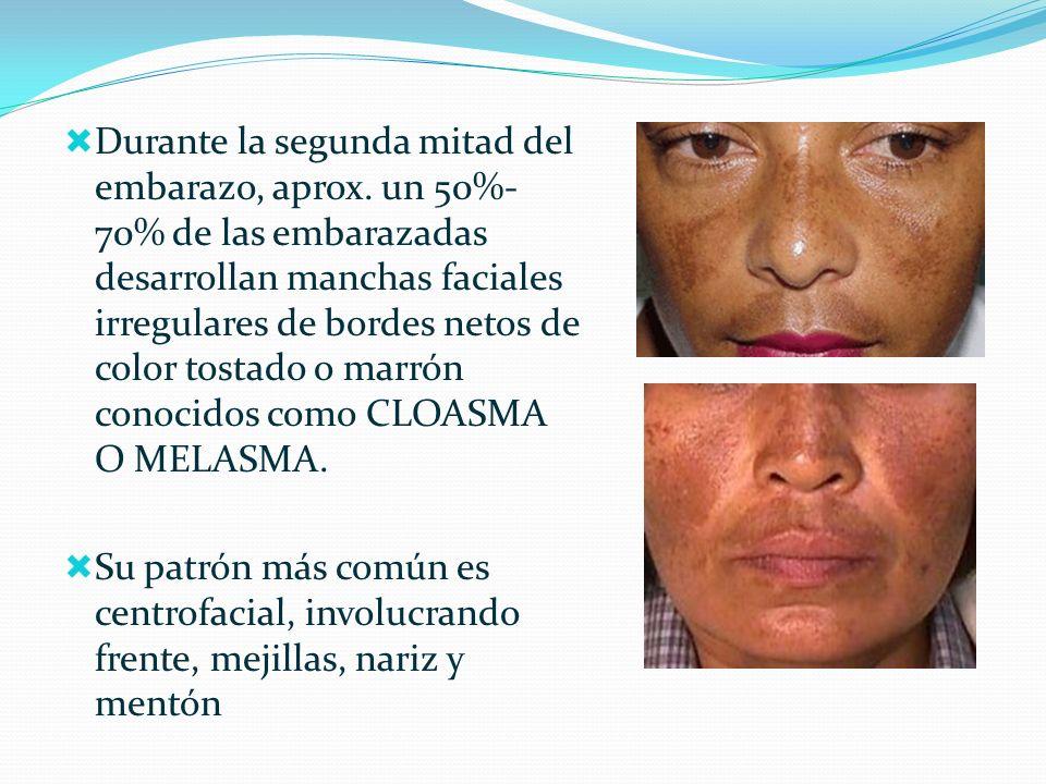 Se clasifica de Acuerdo a sus patrones de pigmentación en: Epidérmico: en el cual la melanina se deposita fundamentalemente en los melanocitos basales.