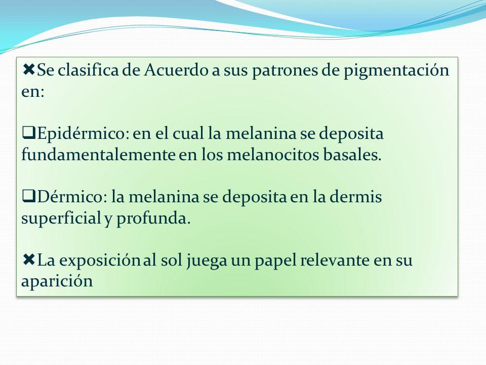 Se clasifica de Acuerdo a sus patrones de pigmentación en: Epidérmico: en el cual la melanina se deposita fundamentalemente en los melanocitos basales