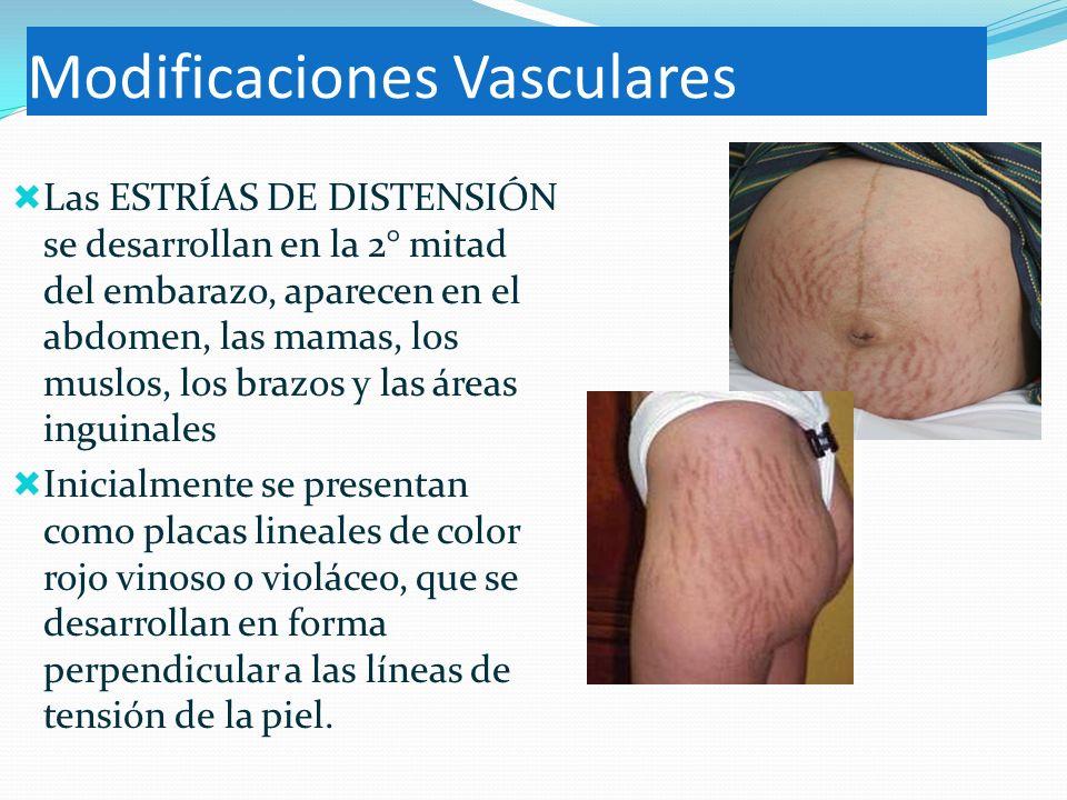Modificaciones Vasculares Las ESTRÍAS DE DISTENSIÓN se desarrollan en la 2° mitad del embarazo, aparecen en el abdomen, las mamas, los muslos, los bra