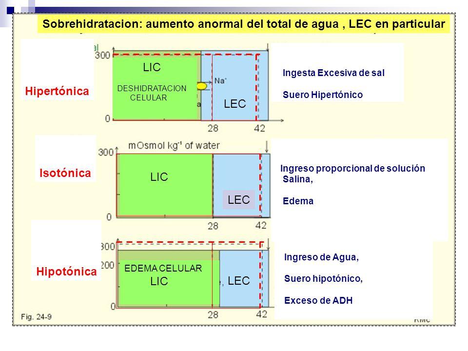 Hipertónica Isotónica Hipotónica Ingesta Excesiva de sal Suero Hipertónico Ingreso proporcional de solución Salina, Edema Ingreso de Agua, Suero hipot