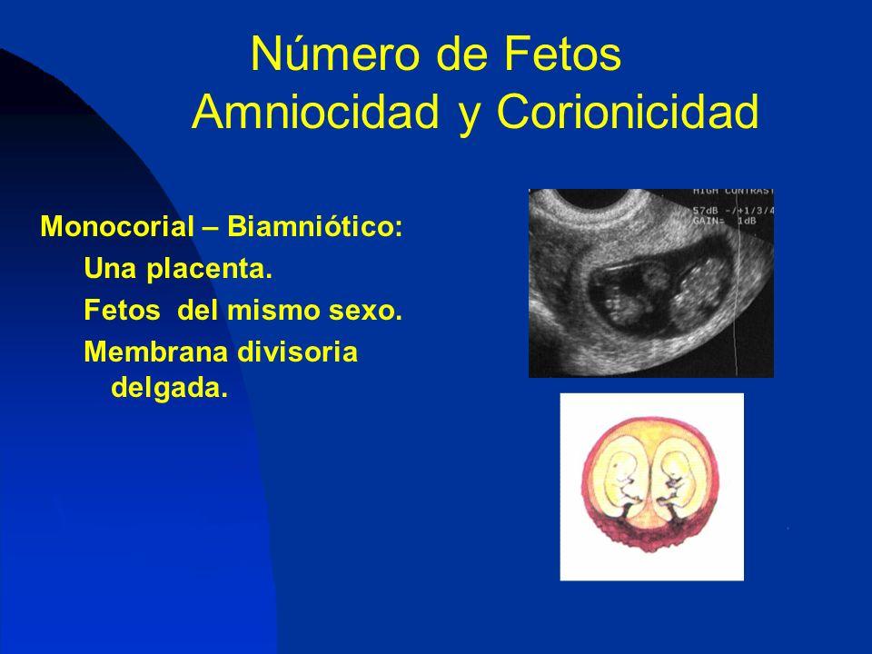 Número de Fetos Amniocidad y Corionicidad Monocorial – Biamniótico: Una placenta. Fetos del mismo sexo. Membrana divisoria delgada.