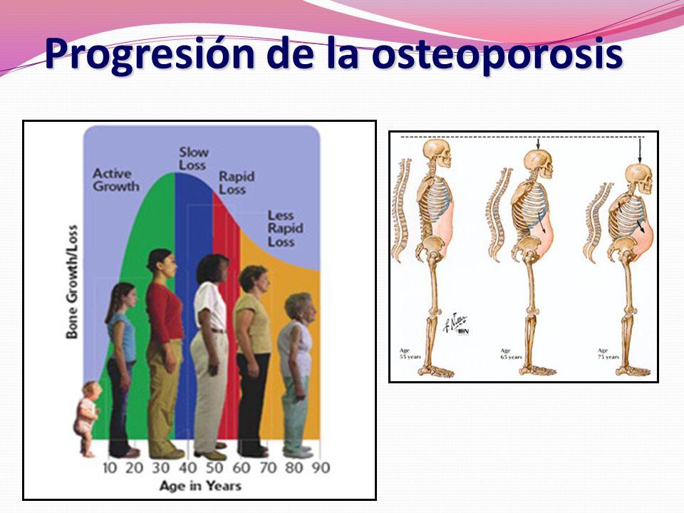 Progresión de la osteoporosis
