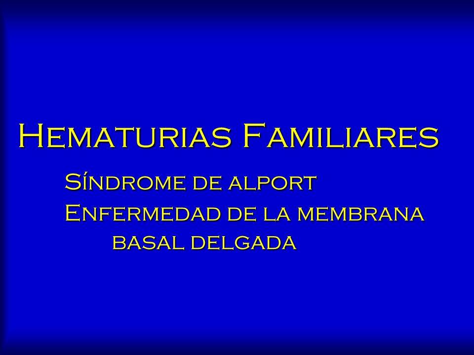 Hematurias Familiares Síndrome de alport Enfermedad de la membrana basal delgada