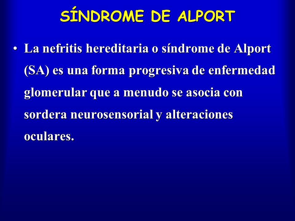 SÍNDROME DE ALPORT La nefritis hereditaria o síndrome de Alport (SA) es una forma progresiva de enfermedad glomerular que a menudo se asocia con sorde
