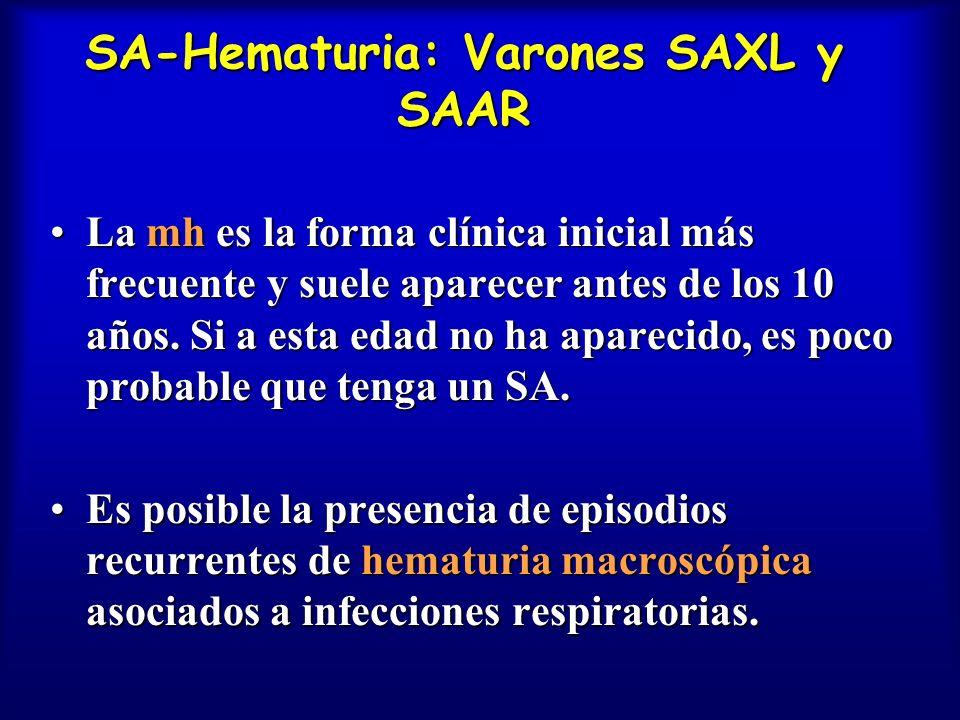 SA-Hematuria: Varones SAXL y SAAR La mh es la forma clínica inicial más frecuente y suele aparecer antes de los 10 años. Si a esta edad no ha aparecid