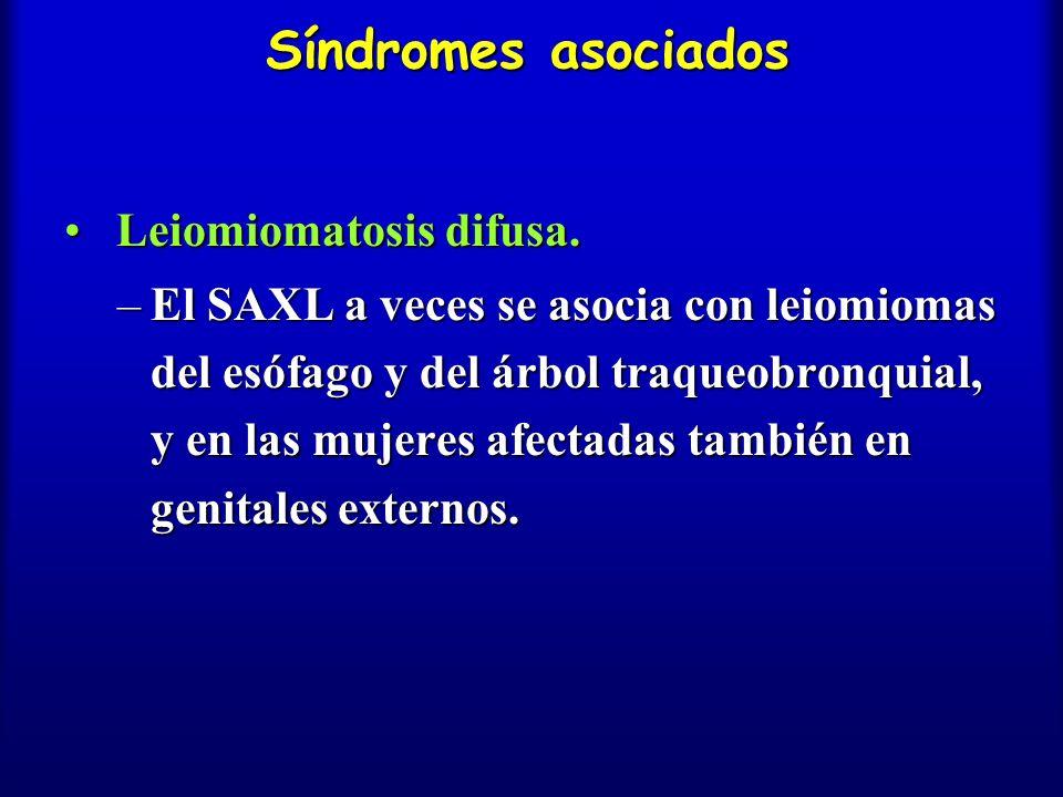 Síndromes asociados Leiomiomatosis difusa. Leiomiomatosis difusa. –El SAXL a veces se asocia con leiomiomas del esófago y del árbol traqueobronquial,