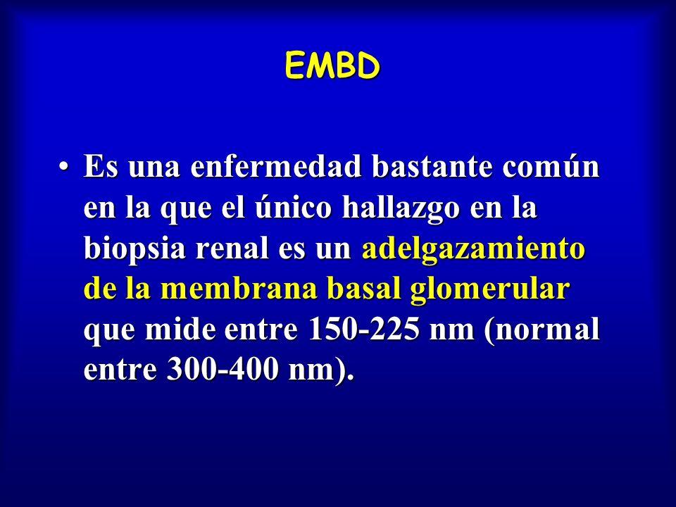 EMBD Es una enfermedad bastante común en la que el único hallazgo en la biopsia renal es un adelgazamiento de la membrana basal glomerular que mide en