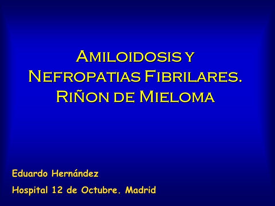 Amiloidosis y Nefropatias Fibrilares. Riñon de Mieloma Eduardo Hernández Hospital 12 de Octubre. Madrid
