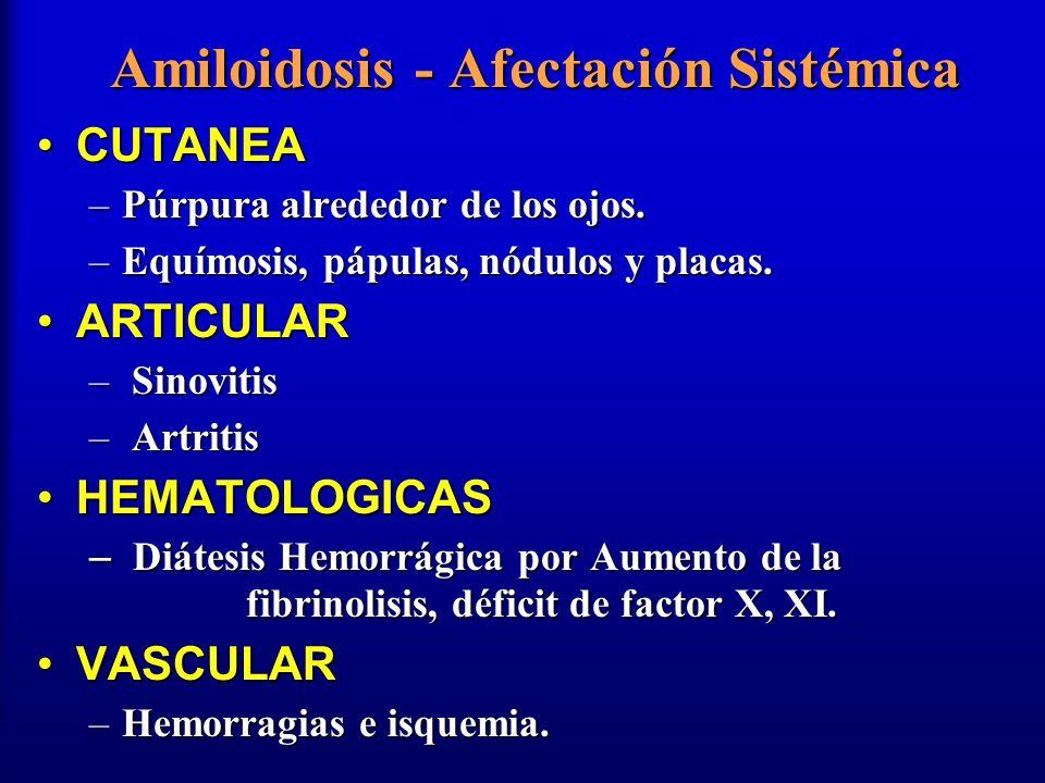 Amiloidosis - Afectación Sistémica CUTANEACUTANEA –Púrpura alrededor de los ojos. –Equímosis, pápulas, nódulos y placas. ARTICULARARTICULAR – Sinoviti