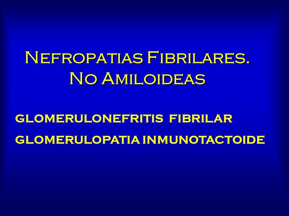 Nefropatias Fibrilares. No Amiloideas GLOMERULONEFRITIS FIBRILAR GLOMERULOPATIA INMUNOTACTOIDE