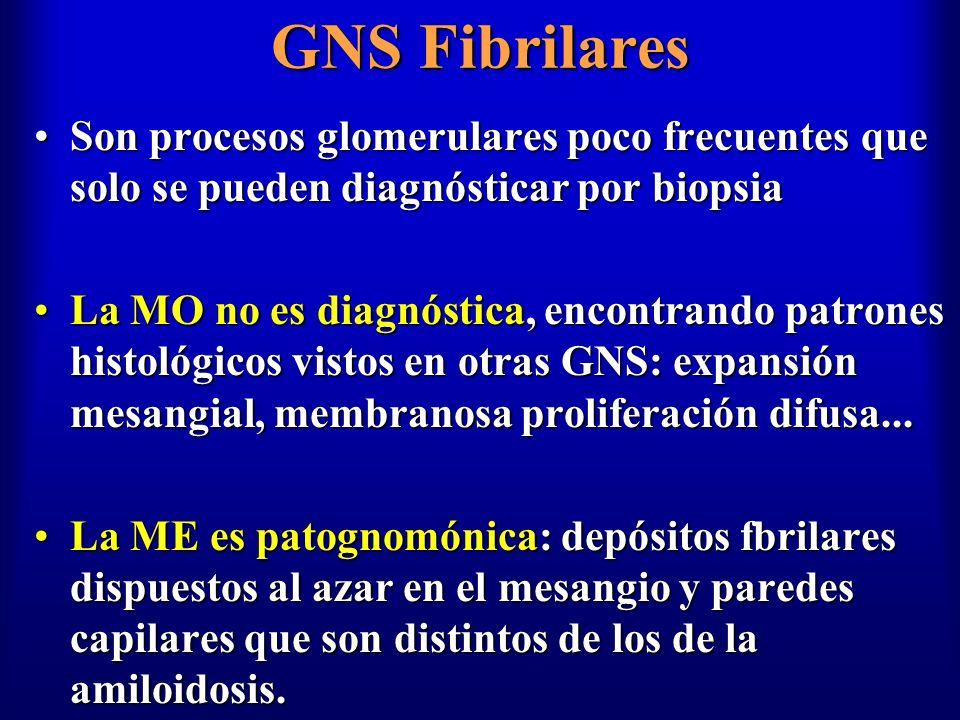 GNS Fibrilares Son procesos glomerulares poco frecuentes que solo se pueden diagnósticar por biopsiaSon procesos glomerulares poco frecuentes que solo