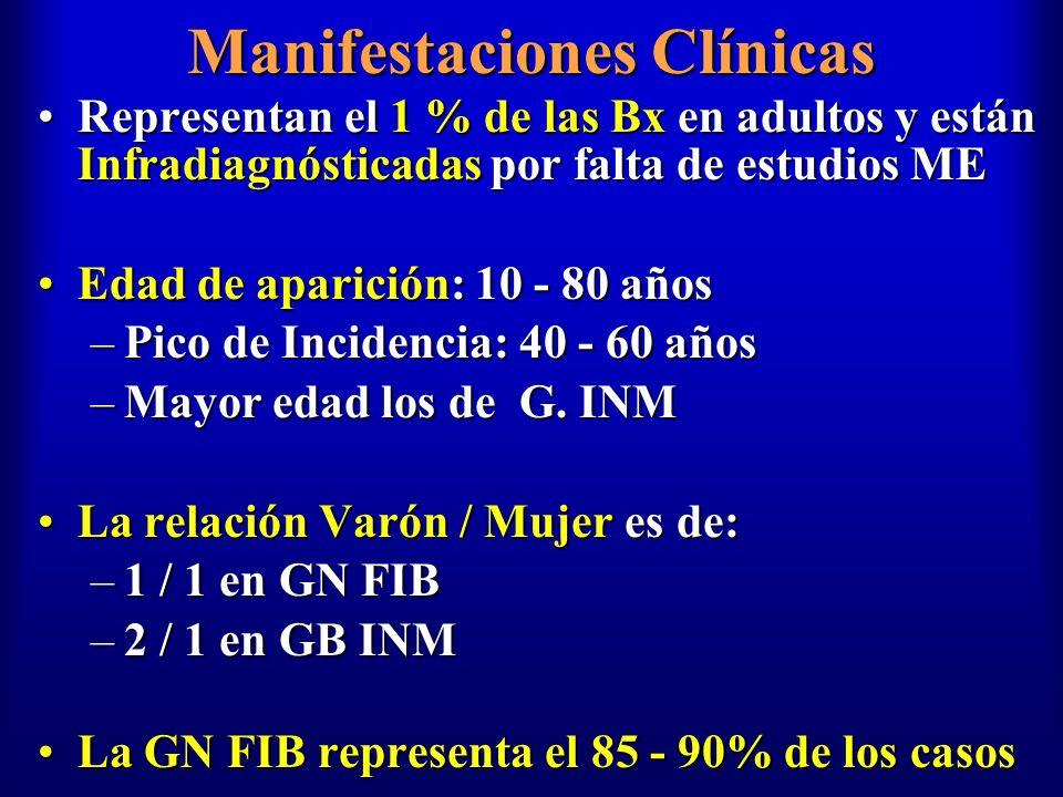 Manifestaciones Clínicas Representan el 1 % de las Bx en adultos y están Infradiagnósticadas por falta de estudios MERepresentan el 1 % de las Bx en a