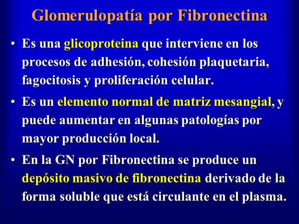 Glomerulopatía por Fibronectina Es una glicoproteina que interviene en los procesos de adhesión, cohesión plaquetaria, fagocitosis y proliferación cel