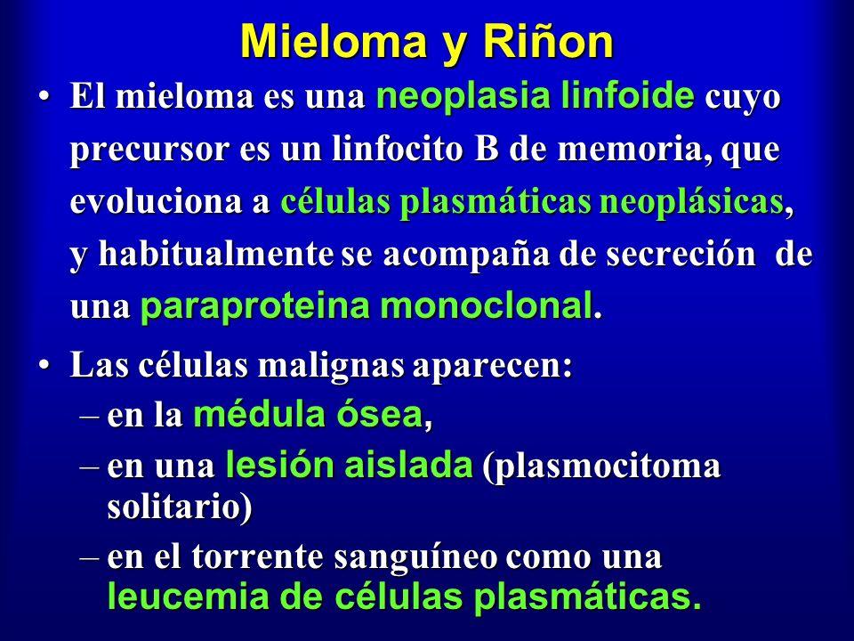 Mieloma y Riñon El mieloma es una neoplasia linfoide cuyo precursor es un linfocito B de memoria, que evoluciona a células plasmáticas neoplásicas, y