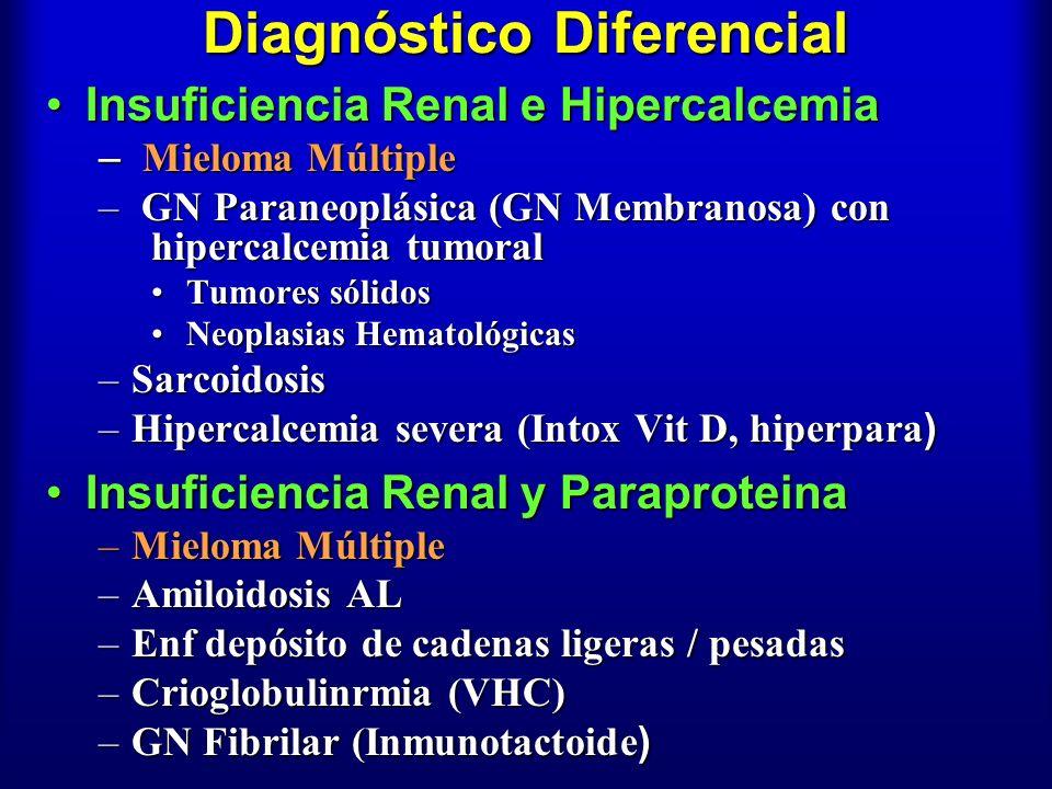 Diagnóstico Diferencial Insuficiencia Renal e HipercalcemiaInsuficiencia Renal e Hipercalcemia – Mieloma Múltiple – GN Paraneoplásica (GN Membranosa)