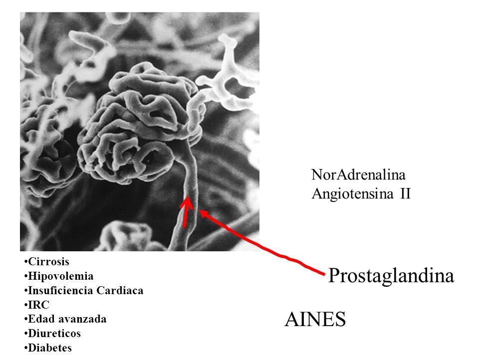 Cirrosis Hipovolemia Insuficiencia Cardiaca IRC Edad avanzada Diureticos Diabetes NorAdrenalina Angiotensina II Prostaglandina AINES