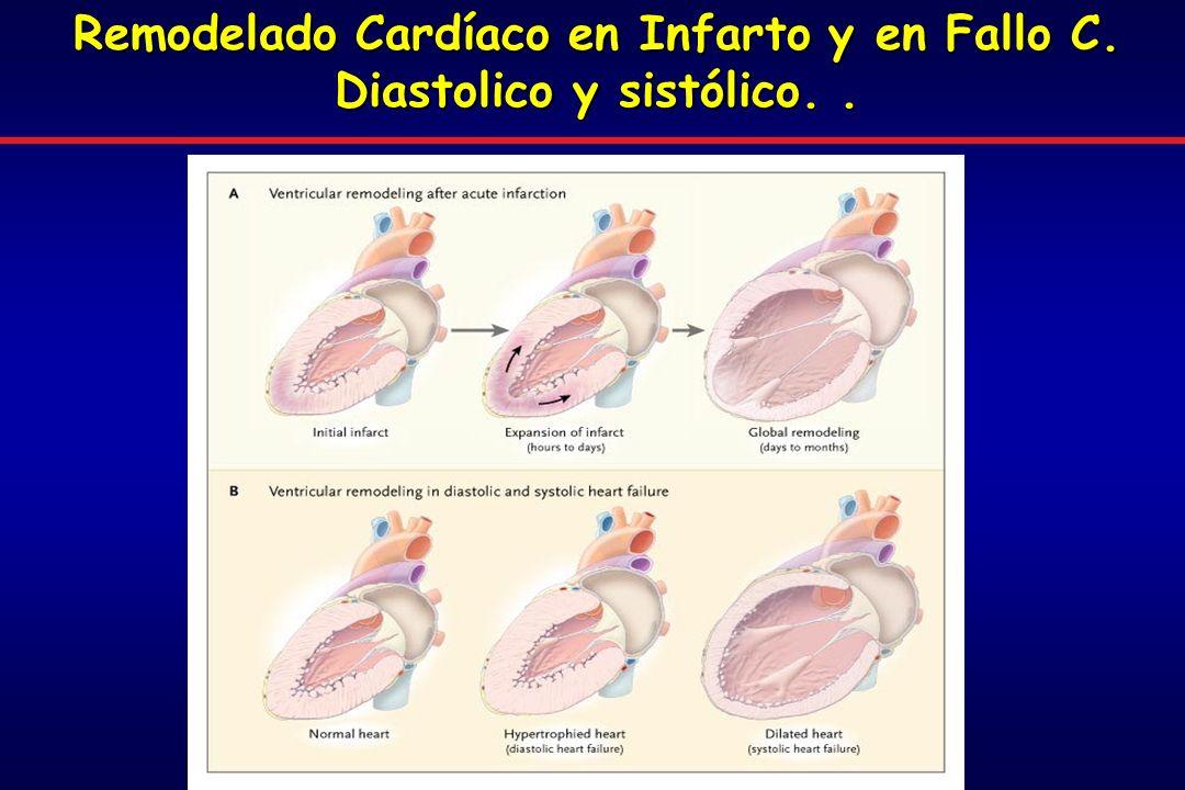 Remodelado Cardíaco en Infarto y en Fallo C. Diastolico y sistólico..