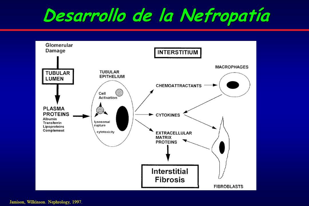Desarrollo de la Nefropatía Jamison, Wilkinson. Nephrology, 1997.