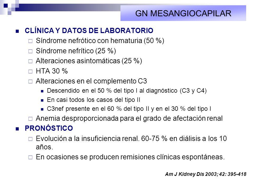 CLÍNICA Y DATOS DE LABORATORIO Síndrome nefrótico con hematuria (50 %) Síndrome nefrítico (25 %) Alteraciones asintomáticas (25 %) HTA 30 % Alteracion