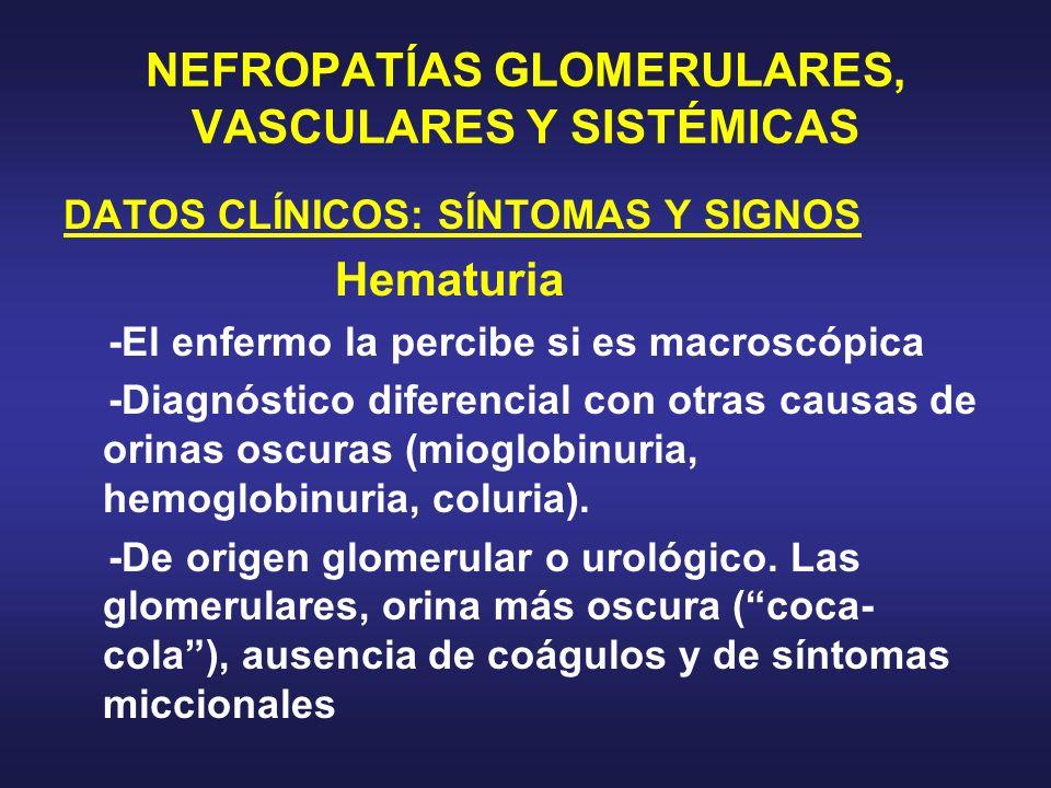 NEFROPATÍAS GLOMERULARES, VASCULARES Y SISTÉMICAS DATOS CLÍNICOS: SÍNTOMAS Y SIGNOS Hematuria -El enfermo la percibe si es macroscópica -Diagnóstico d