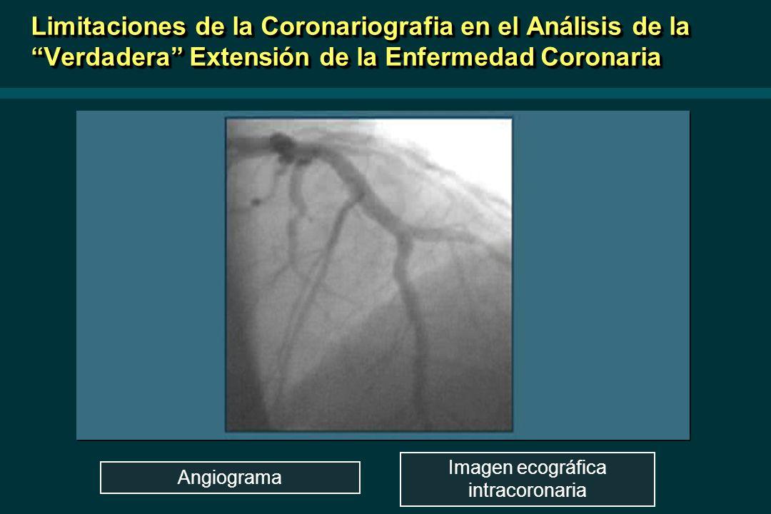 Angiograma Imagen ecográfica intracoronaria Limitaciones de la Coronariografia en el Análisis de la Verdadera Extensión de la Enfermedad Coronaria