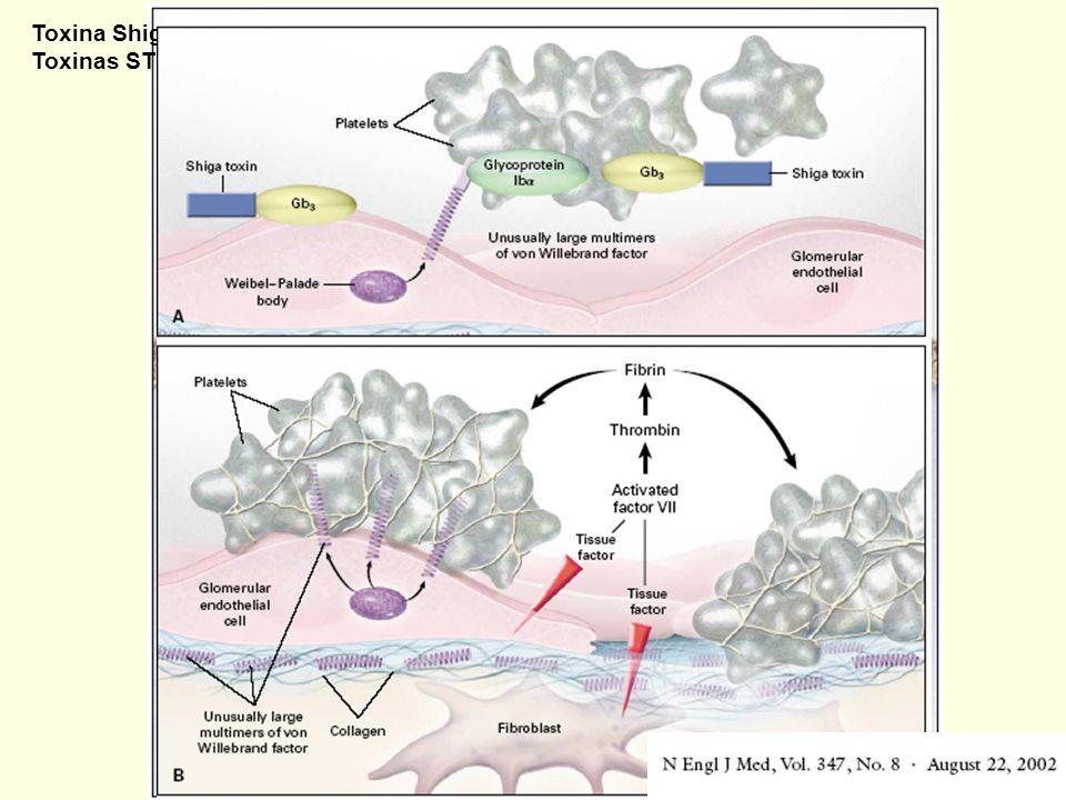 Toxina Shiga (S. dysenteriae) Toxinas ST-1 y ST-2 (E. coli, 0157:h7)