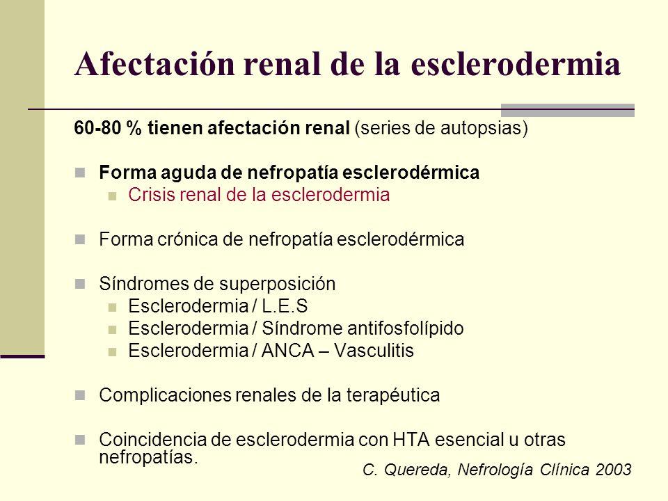 Afectación renal de la esclerodermia 60-80 % tienen afectación renal (series de autopsias) Forma aguda de nefropatía esclerodérmica Crisis renal de la