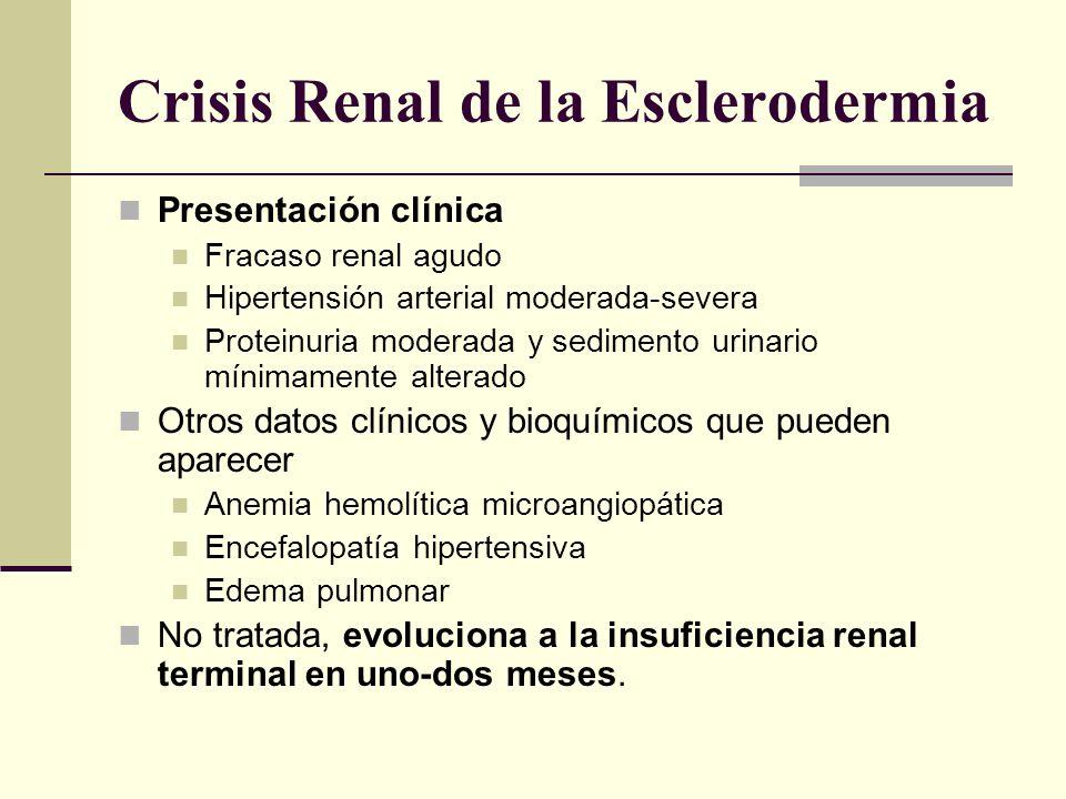 Crisis Renal de la Esclerodermia Presentación clínica Fracaso renal agudo Hipertensión arterial moderada-severa Proteinuria moderada y sedimento urina