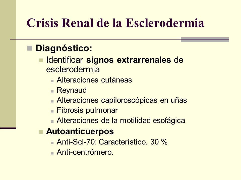 Crisis Renal de la Esclerodermia Diagnóstico: Identificar signos extrarrenales de esclerodermia Alteraciones cutáneas Reynaud Alteraciones capiloroscó