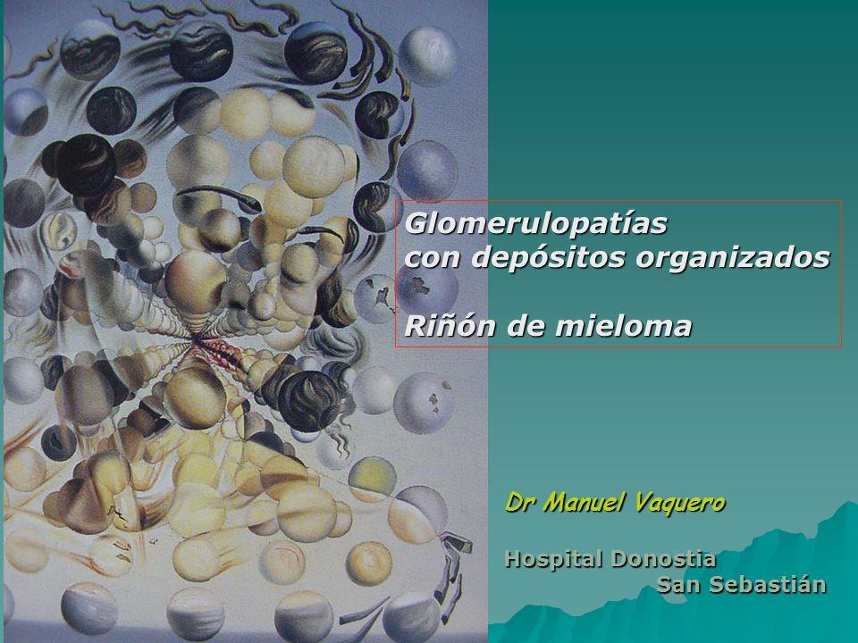 Glomerulopatías con depósitos organizados Riñón de mieloma Dr Manuel Vaquero Hospital Donostia San Sebastián San Sebastián