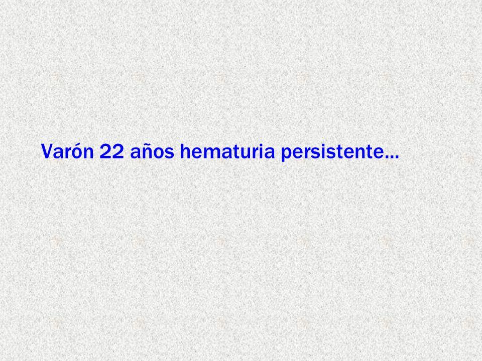 Varón 22 años hematuria persistente...