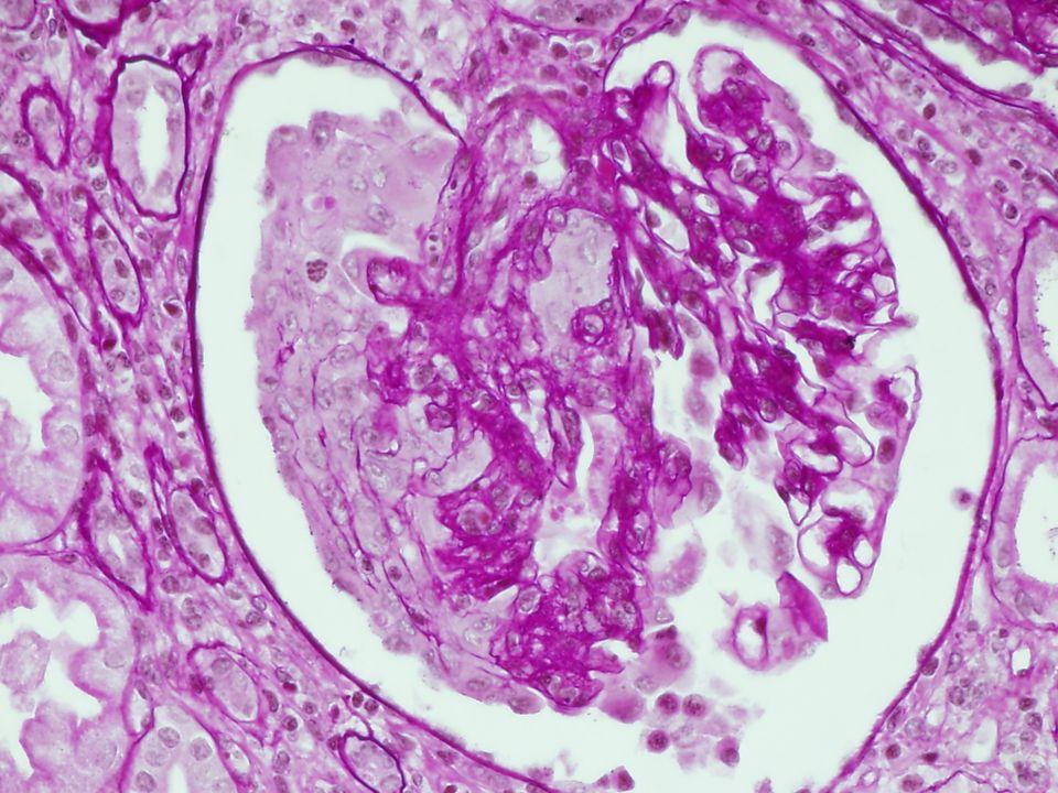 Enfermedad de la lámina densa fina Histología: Glomérulos normales IF: Presencia de todo tipo de cadenas de colágeno ME: Adelgazamiento difuso de la lamina densa (< 250 nm)