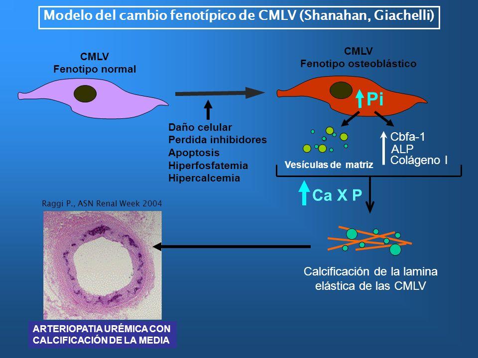 Daño celular Perdida inhibidores Apoptosis Hiperfosfatemia Hipercalcemia Vesículas de matriz CMLV Fenotipo osteoblástico Pi Cbfa-1 ALP Colágeno I Ca X