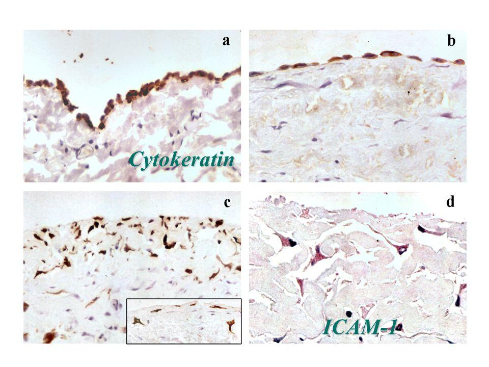 ICAM-1 Cytokeratin