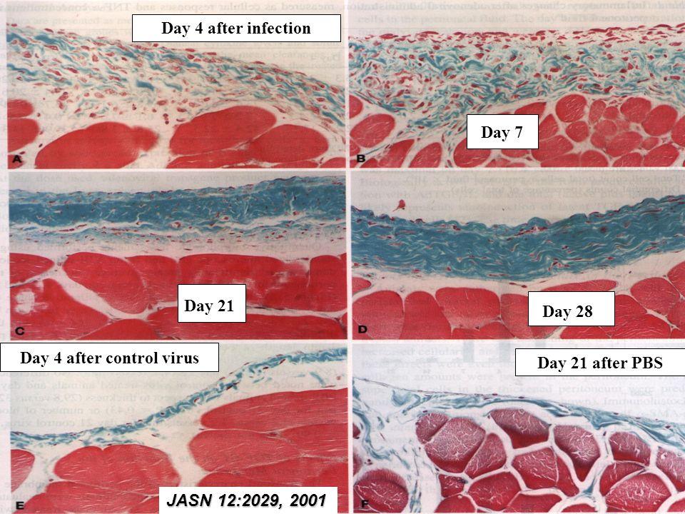 Conclusión final Las células fibroblasto-like que aparecen en el submesotelio de la membrana peritoneal procedentes de la TEM de la CM pueden contribuir no solo al desarrollo de fibrosis sino también a la aparición de neoangiogénesis e incremento de la permeabilidad peritoneal a través de la sobrerregulación de VEGF.