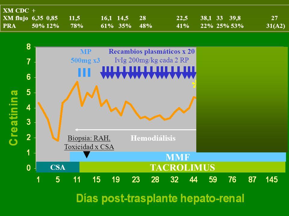 CSA TACROLIMUS MMF MP 500mg x3 Recambios plasmáticos x 20 IvIg 200mg/kg cada 2 RP Hemodiálisis Biopsia: RAH, Toxicidad x CSA Rituximab **** XM CDC+ XM flujo6,35 0,85 11,5 16,1 14,5 28 22,5 38,1 33 39,8 27 PRA50% 12% 78% 61% 35% 48% 41% 22% 25% 53% 31(A2)