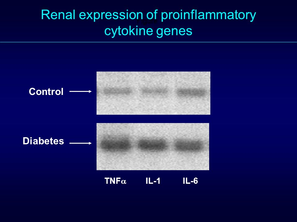 Figure 1. Renal expression of proinflammatory cytokine genes Control Diabetes TNF IL-1IL-6