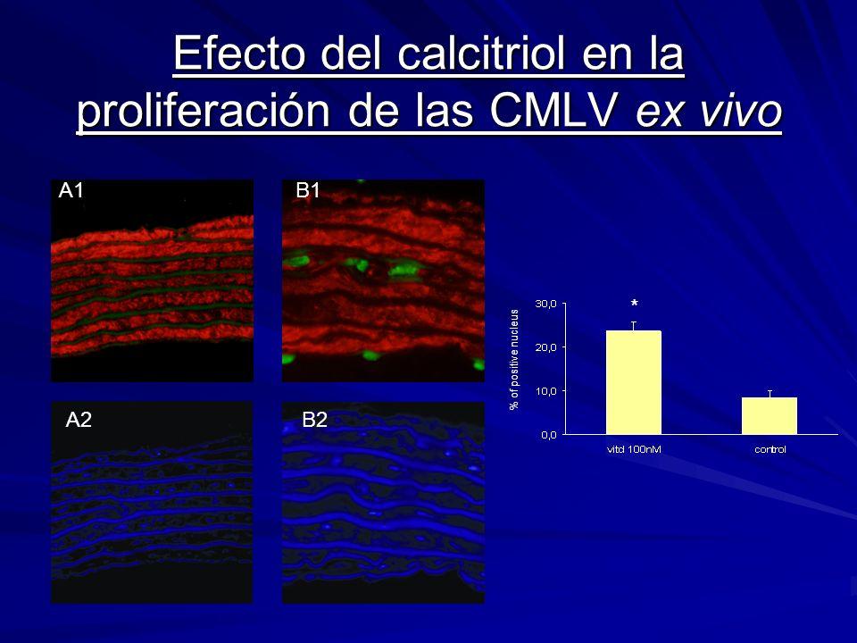 Efecto del calcitriol en la proliferación de las CMLV ex vivo A1 A2 B1 B2 % of positive nucleus *